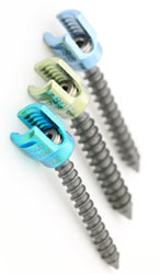 Open Pedicle Screw System